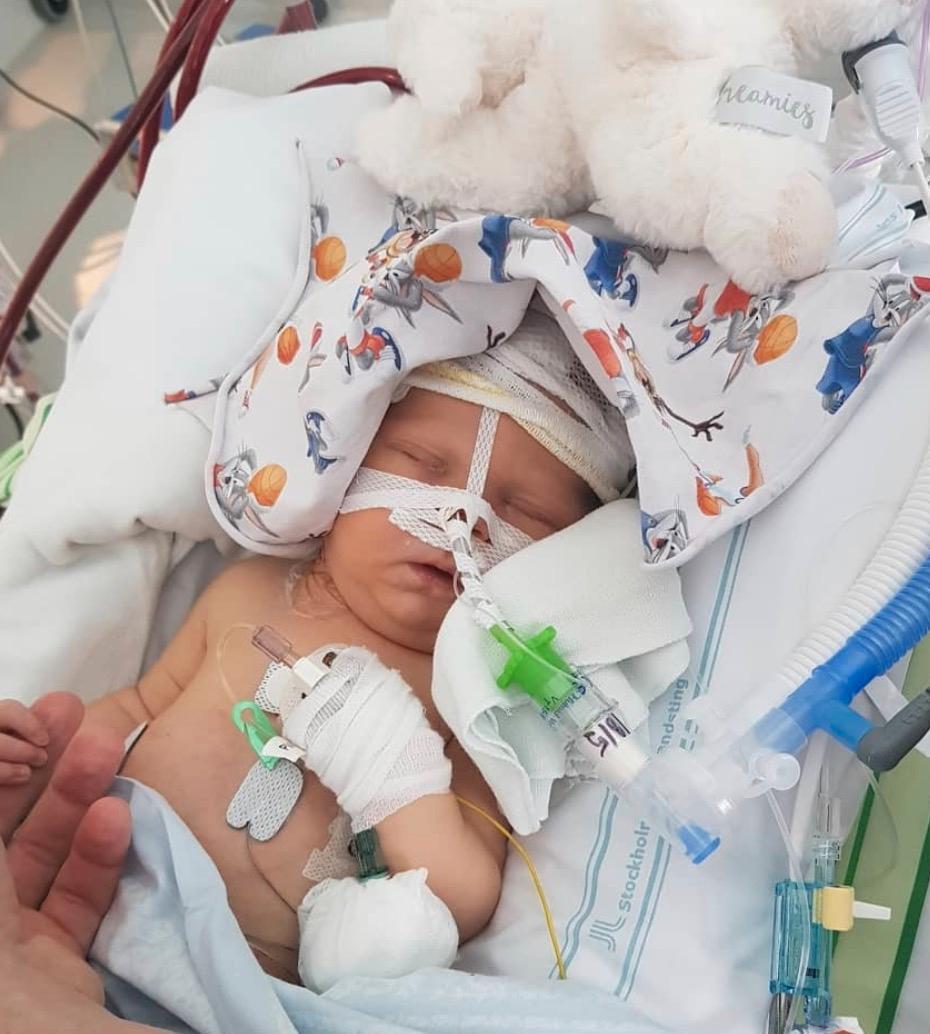 Hugo föddes med en lunga.