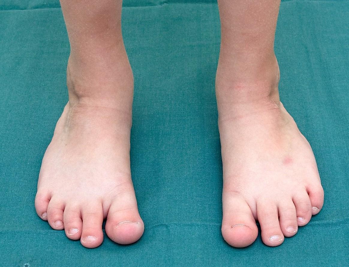 Bilden föreställer ett sexårigt barns fötter efter behandling för klumpfot.