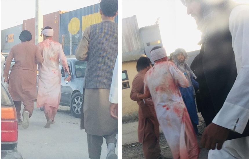 Bilder som sägs visa skadade personer vid Abbey Gate vid Hamid Karzai Airport i Kabul.