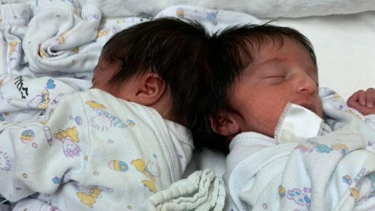 Tvillingarna föddes med hopväxta bakhuvuden.