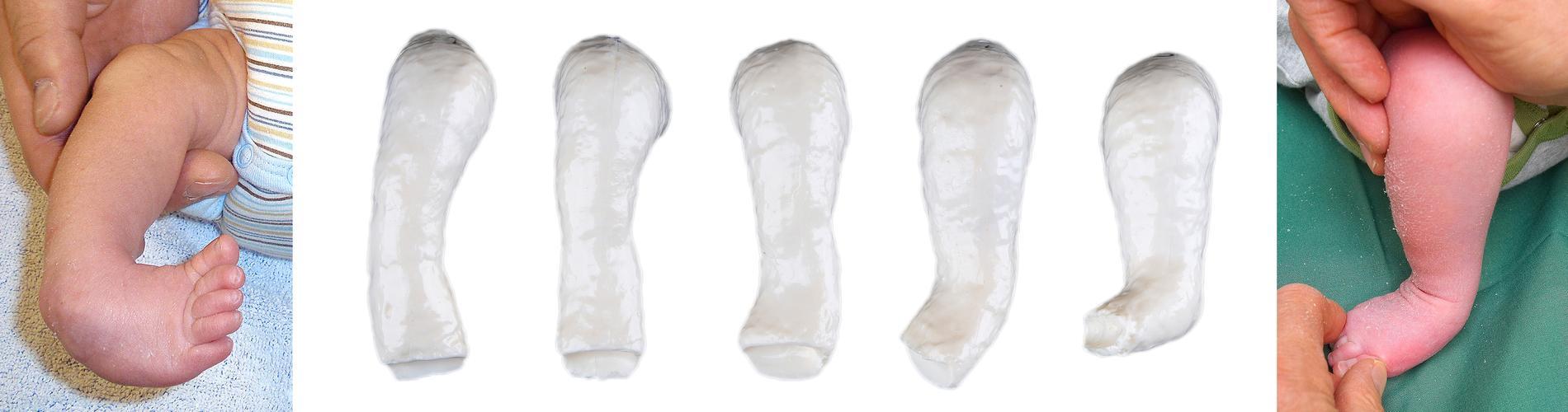 Fotens utveckling när man utför gipsbehandling av klumpfot.
