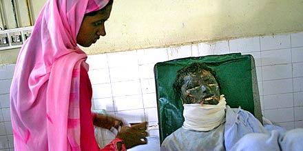 Svårt skadad Hina Fatimas man kastade batterisyra i hennes ansikte. Nu svävar den svårt brända 22-åringen mellan liv och död.