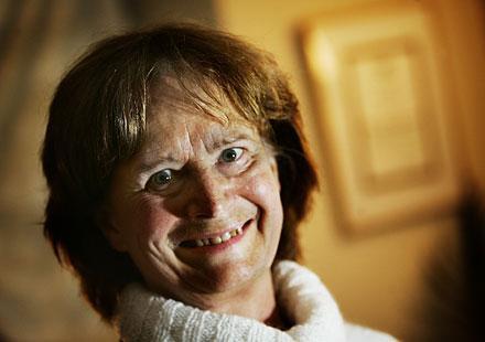 Helena Janlöv-Remnerud, lymfterapeut på Lymph Center.