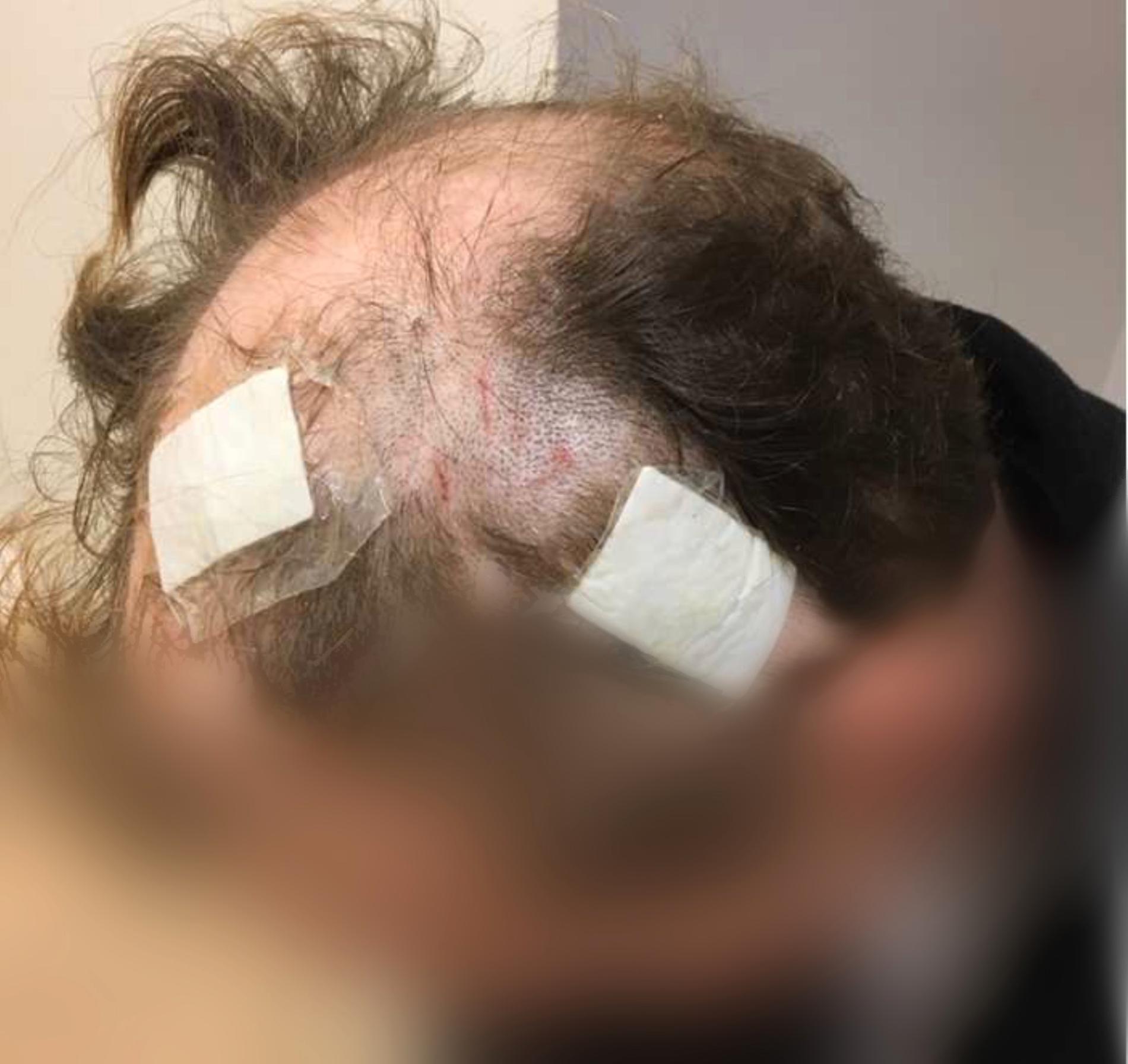 Mannen fick flera skärskador i huvudet efter att ha träffats av en glasflaska.