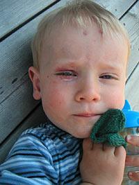 Arvid skadades bland annat vid ögat när gässen attackerade honom.