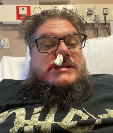 Pär skickade näsblodsbild till familjen för att berätta att han mådde okej.