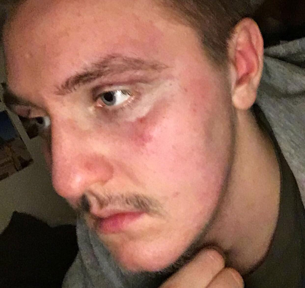 Hans egen bild efter misshandeln.