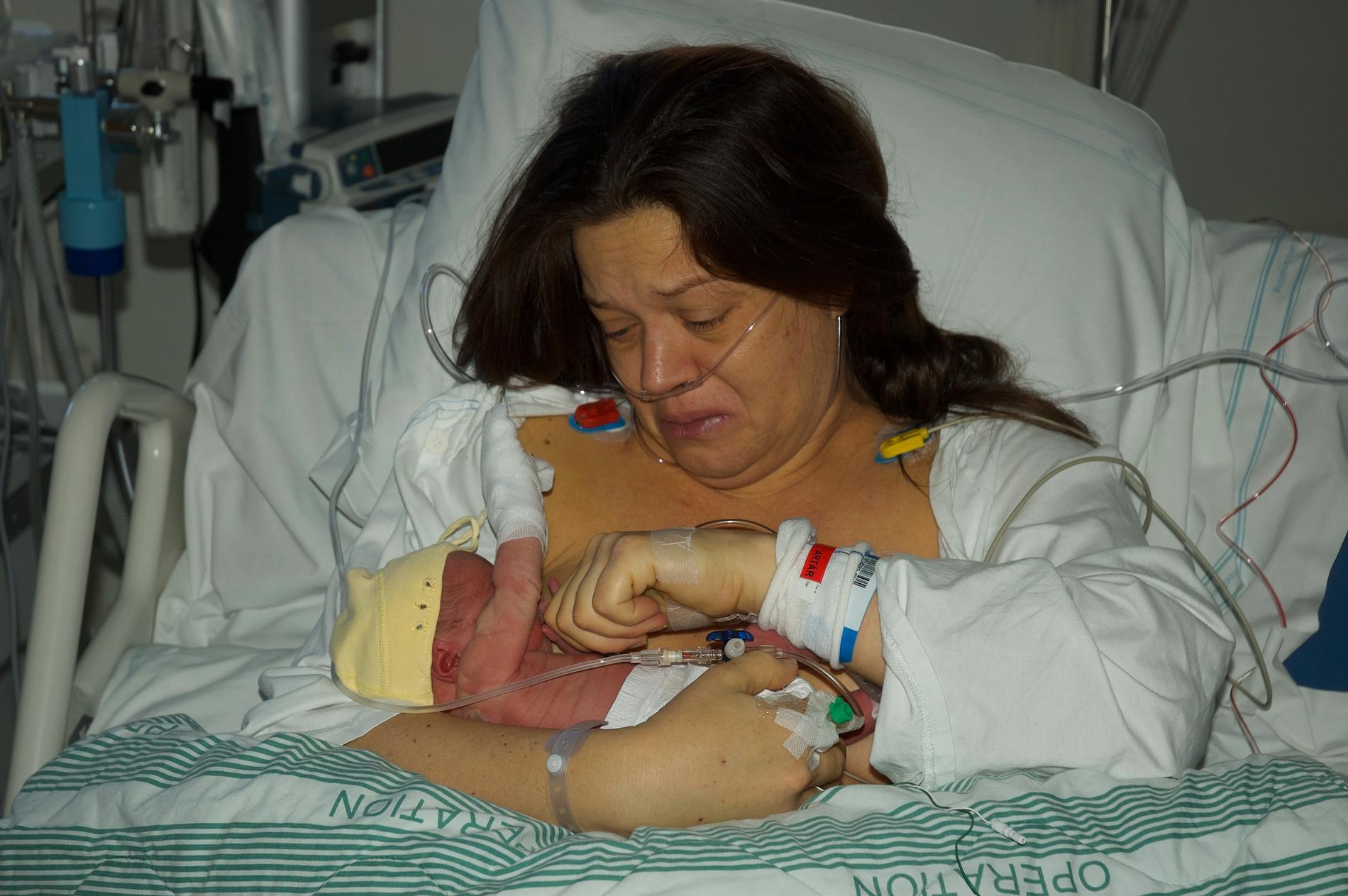 Karolina drabbades av svår havandeskapsförgiftning, HELLP-syndromet.