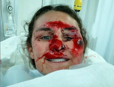 Alice Merryweather skadades illa i en krasch under tidiga hösten
