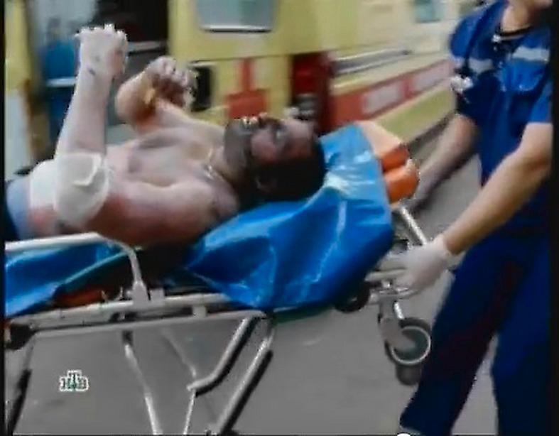 Den svårt brännskadade Aleksandr Galimov förs till sjukhus.