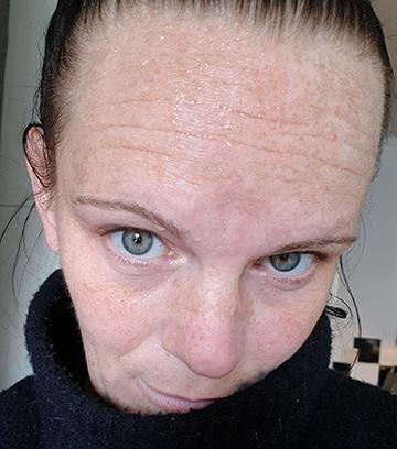 Josefine svettas framför allt i ansiktet, hårbotten och under halsen.