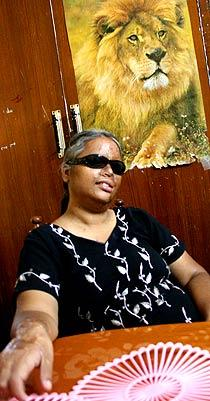 Ärren består Det har gått sex år sedan doktor Mahalakshmi blev överfallen med syra. Ärren syns fortfarande tydligt. Foto: AKSEL SUNDSTRÖM