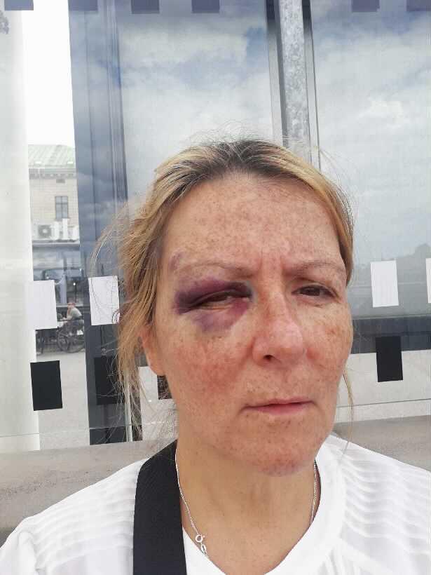 Maria, 54, fick en rejäl blåtira efter incidenten.
