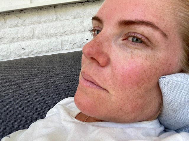 Linn har haft feber som kommit och gått, yrsel, domningar och minnesluckor efter att hon haft corona.