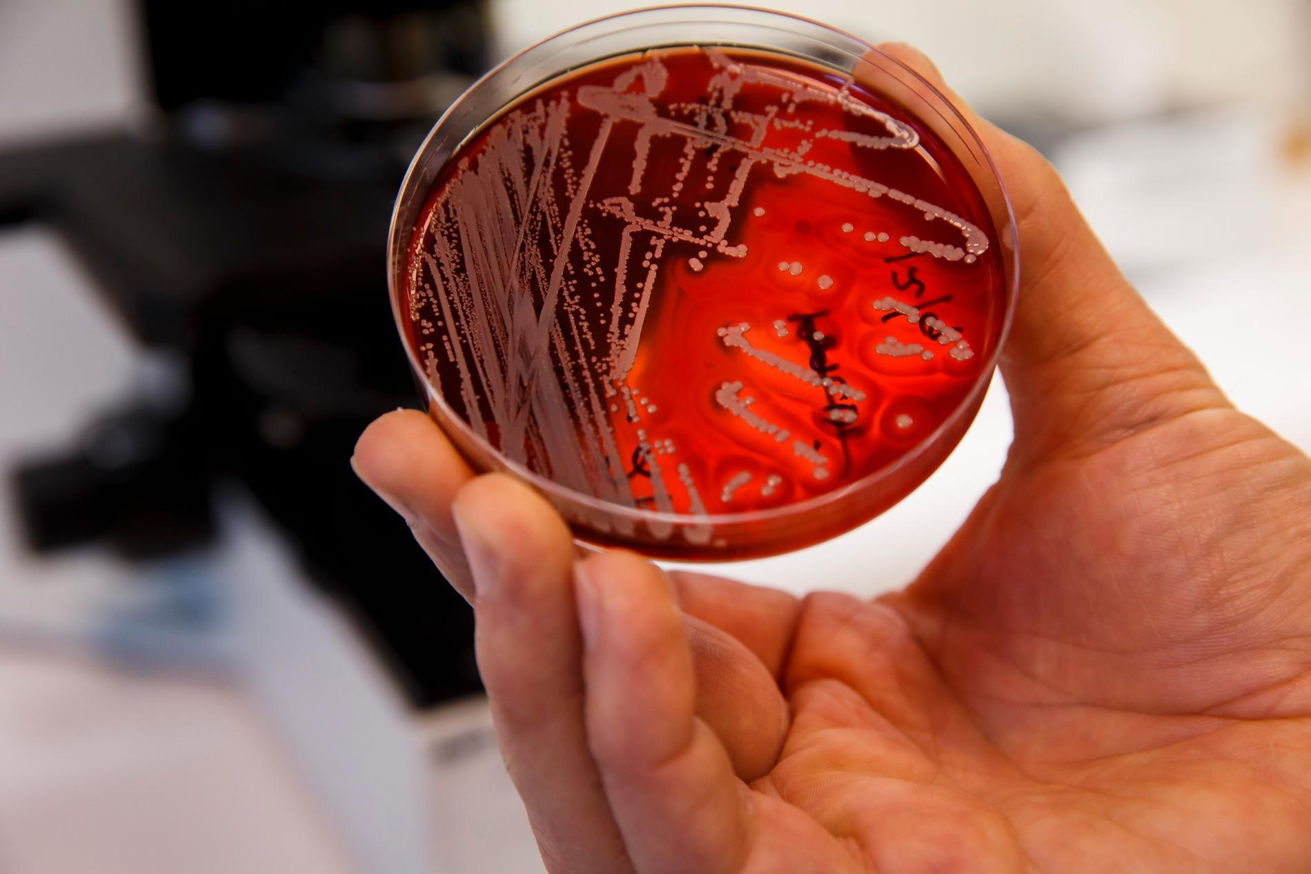 33000 européer får varje år sätta livet till på grund av antibiotikaresistens.