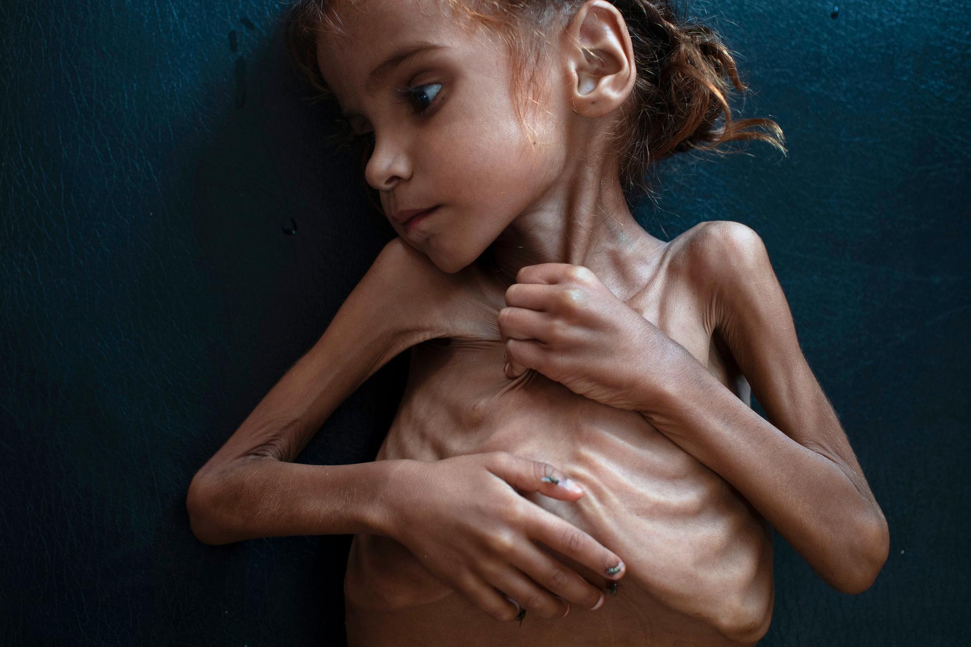 Amal Hussein, 7, dog av undernäring. Hon blev en symbol för svältkatastrofen i Jemen.