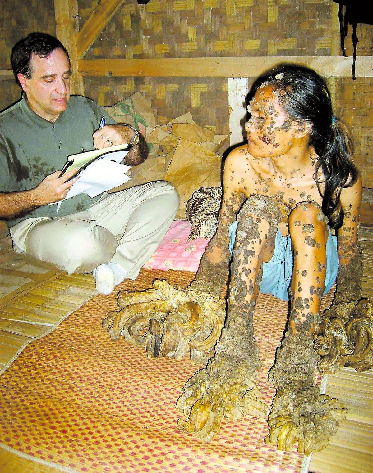 KALLAS FÖR trämannen Dede, 32, från Indonesien har växande vårtor över hela kroppen. Hudläkaren Anthony Gaspari från USA undersöker honom.
