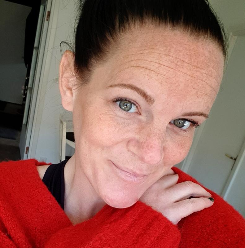Josefine, 42, lider av sjukdomen hyperhidros.